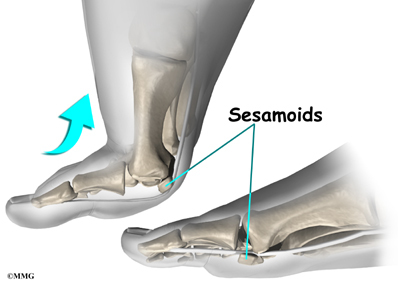 Fracture Forefoot Sesamoid Phalanges - Medical Disability Guidelines