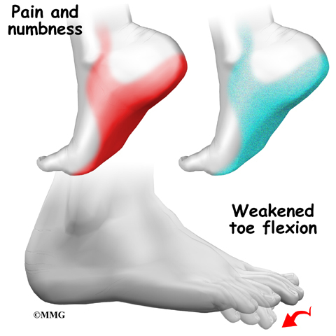 Something is. causes of bottom of foot numb