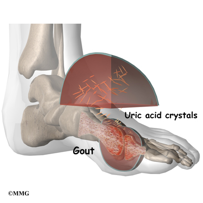food for high uric acid levels how to get instant relief from uric acid pain can you have gout in your hip joint