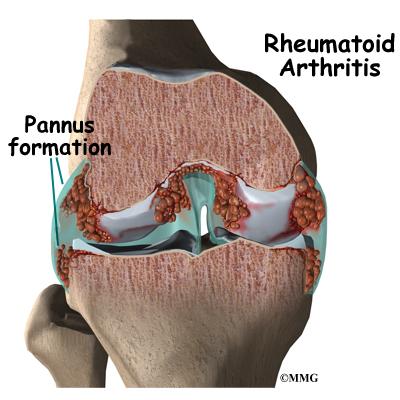 rheumatoid arthritis eorthopod