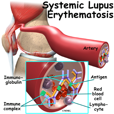 systemic lupus erythematosus | eorthopod, Skeleton