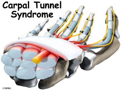 Carpal Tunnel Syndrome | eOrthopod.com