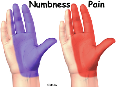 Numbness Thumb Two Fingers Left Hand
