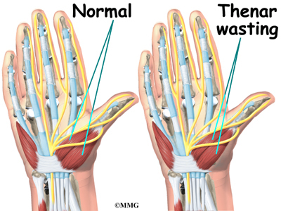 carpal tunnel syndrome | eorthopod, Cephalic Vein