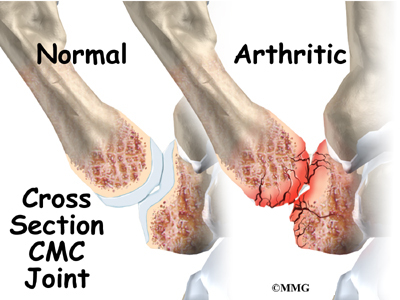 Interpositional arthroplasty on thumb joint