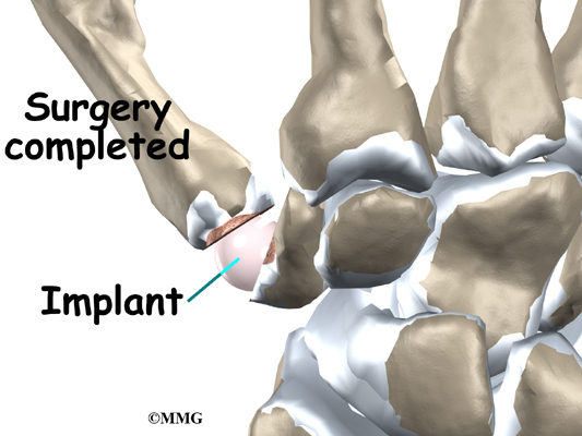 Artificial Joint Replacement of the Thumb | eOrthopod.com