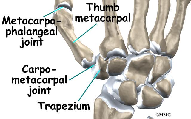 Thumb Fusion Surgery Eorthopod