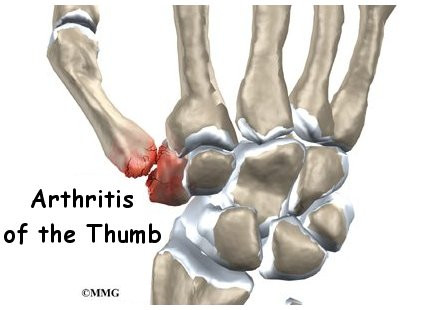 how to get rid of arthritis in wrist