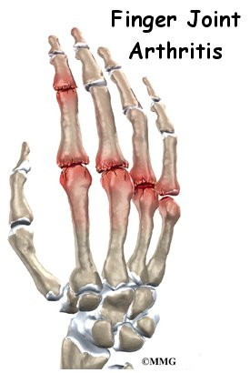 Finger Joint Arthritis