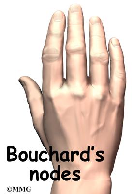 finger joint arthritis eorthopod com