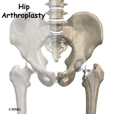 Hip Replacement Eorthopod
