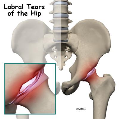Labral Tears Of The Hip Eorthopod