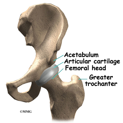 Hip Pinning Surgery For A Fractured Hip Eorthopod