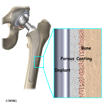 Bone prothesis