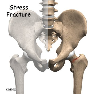 Stress Fracture of the Hip