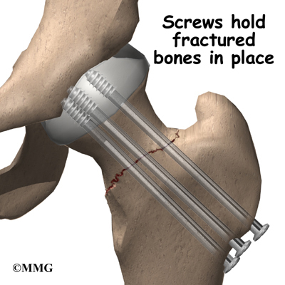 cracked shoulder socket