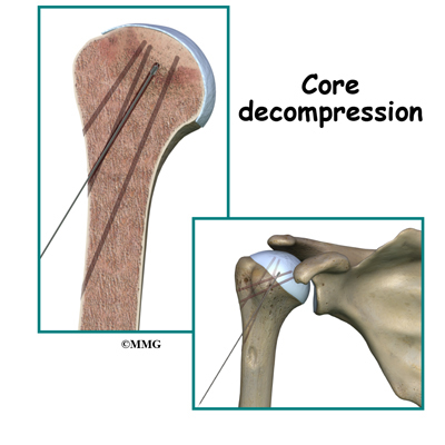 Osteonecrosis of the Humeral Head | eOrthopod.com