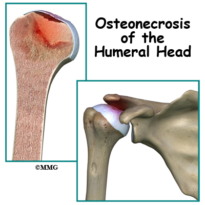 Osteonecrosis of the Humeral Head