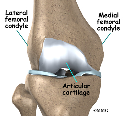 Osteochondritis Dissecans of the Knee | eOrthopod.com
