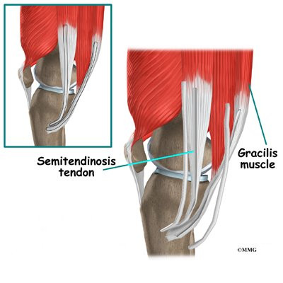 Hamstring tendon anatomy