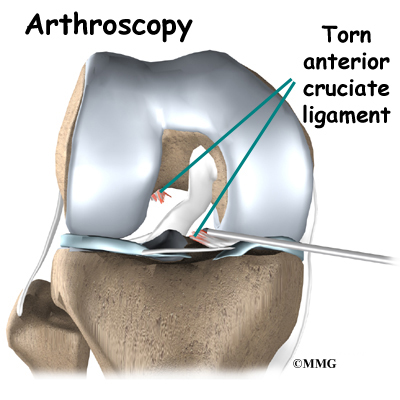 acl reconstruction graft information Acl reconstruction — comprehensive overview covers definition, preparation, results of this knee ligament-repairing procedure.
