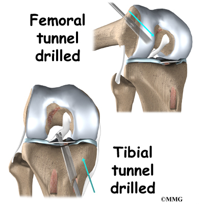 acl reconstruction surgery Rehabilitation after surgery for an acl tear is a lengthy process return to sports and activities takes months there are many variations of acl rehabilitation, and the information provided here is simply an overview.