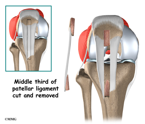 Anterior Cruciate Ligament Injuries | eOrthopod.com