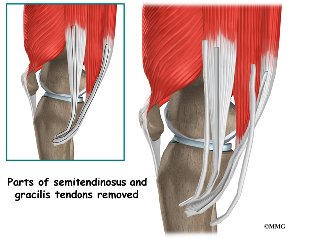 Anterior Cruciate Ligament Injuries Eorthopod