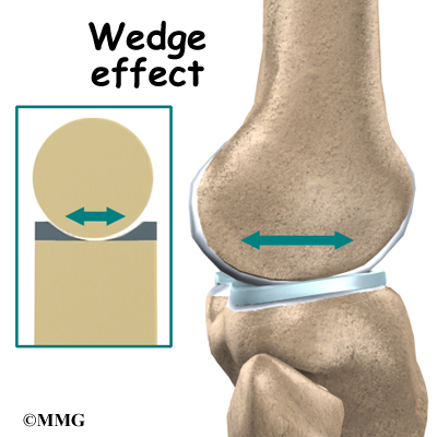 Knee Anatomy   eOrthopod.com