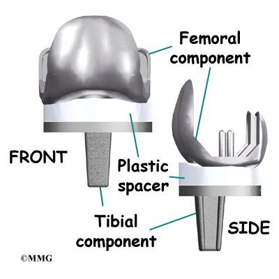 artificial knee prothesis replacement During primary total knee replacement, the knee joint is replaced with an implant, or prosthesis, made of metal and plastic components although most total knee replacements are very successful, over time problems such as implant wear and loosening may require a revision procedure to replace the original components.