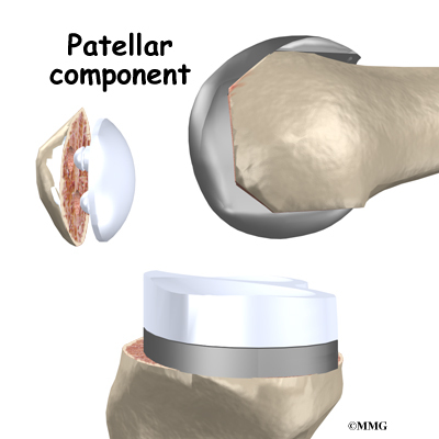 Artificial Joint Replacement Of The Knee Eorthopod Com