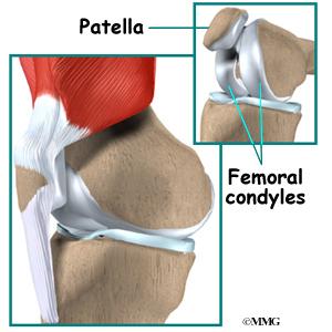 Unicompartmental knee replacement eorthopod unicompartmental knee replacement ccuart Choice Image