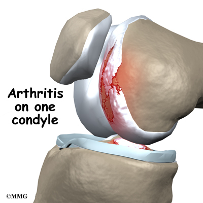 Unicompartmental knee replacement eorthopod unicompartmental knee replacement publicscrutiny Image collections