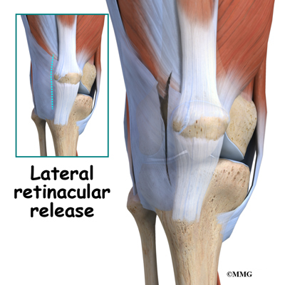 Bipartite Patella Eorthopod Com Such joints are stiff and very strong and they can be found in several areas of the body. bipartite patella eorthopod com