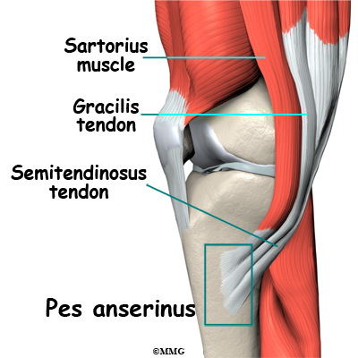 Pes anserine bursitis of the knee eorthopod pes anserine bursitis of the knee ccuart Choice Image