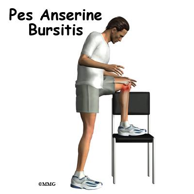 Pes Anserine Bursitis of the Knee | eOrthopod.com