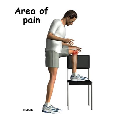 Pes Anserine Bursitis Of The Knee