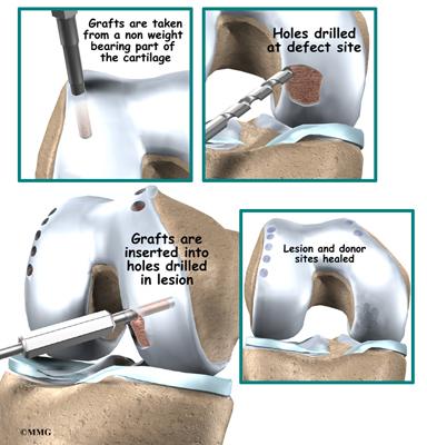 how to break scar tissue inside knee