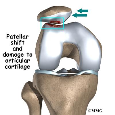 articular cartilage injury