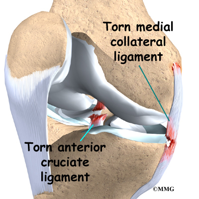 Image result for KNEE MCL INJURY