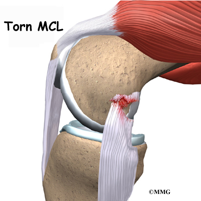Collateral Ligament Injuries Eorthopod