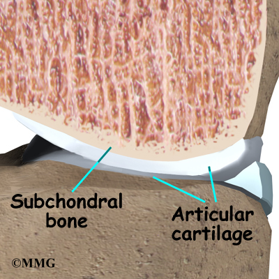 Glucosamine and Chondroitin Sulfate for Osteoarthritis of the Knee