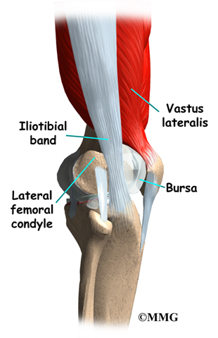 Iliotibial band syndrome eorthopod iliotibial band syndrome ccuart Image collections