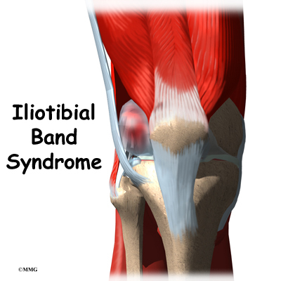 iliotibial band syndrome | eorthopod, Cephalic Vein