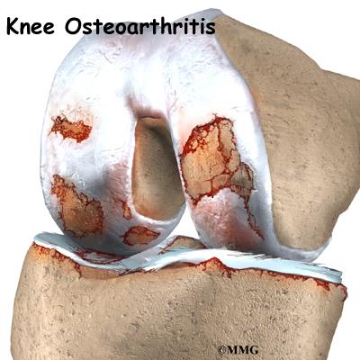 Knee Osteoarthritis   eOrthopod.com