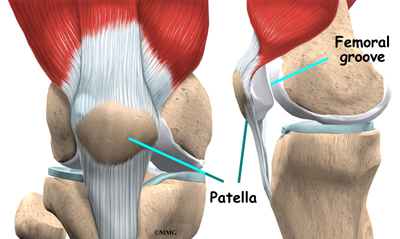 Patellofemoral Problems