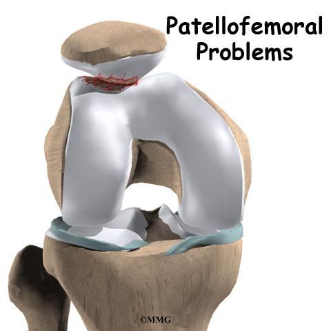 Patellofemoral Problems