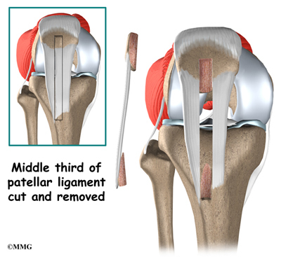 Posterior Cruciate Ligament Injuries | eOrthopod.com