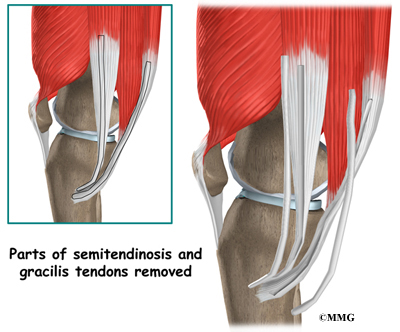 Posterior Cruciate Ligament Injuries   eOrthopod.com