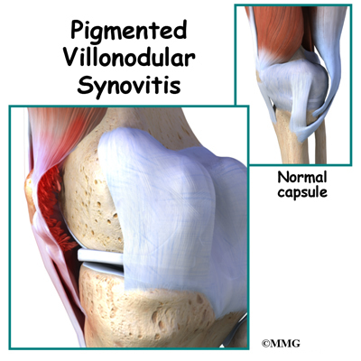 Pigmented Villonodular Synovitis of the Knee
